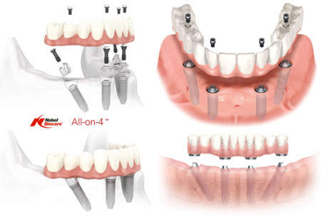All-On-4 Technology Treatment Ajmer