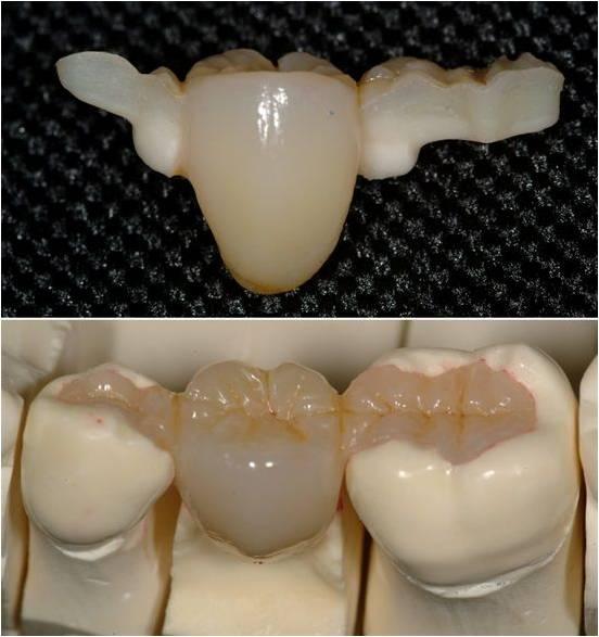 Ceramic Inlays Treatment Ajmer