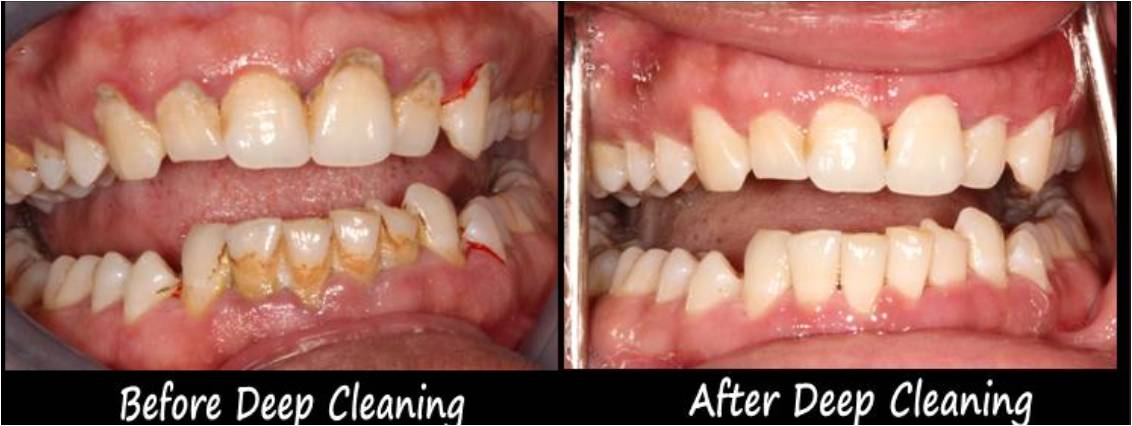 Deep Cleaning Treatment Ajmer