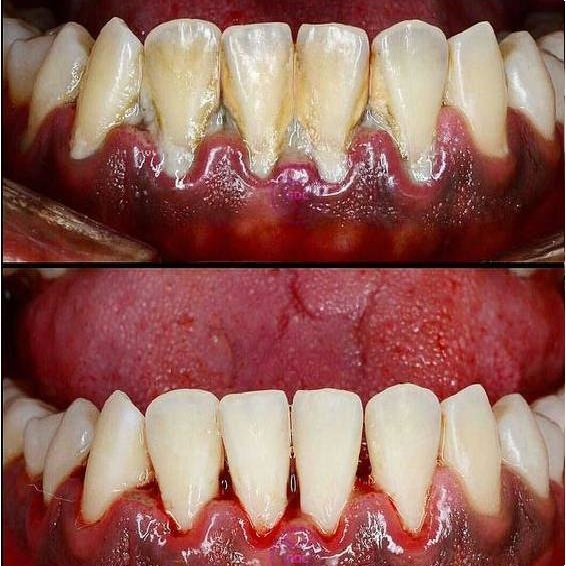 Full Mouth Scaling & Polishing Treatment Ajmer