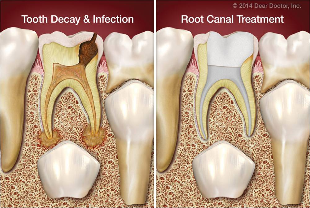 Kids Root Canal Treatment Ajmer