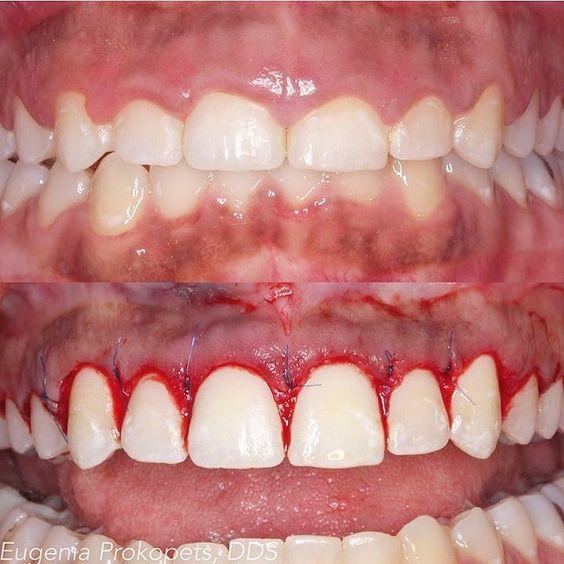 Laser Gummy Smile Correction Treatment Ajmer