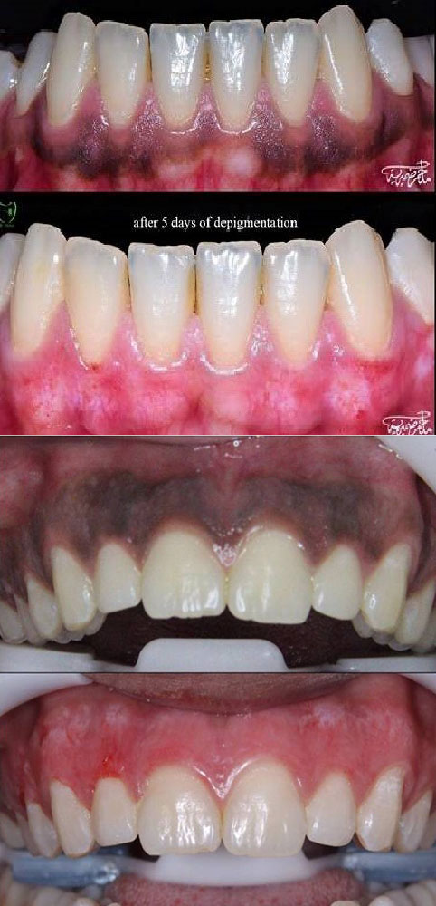 Laser Gums De Pigmentation Treatment Ajmer