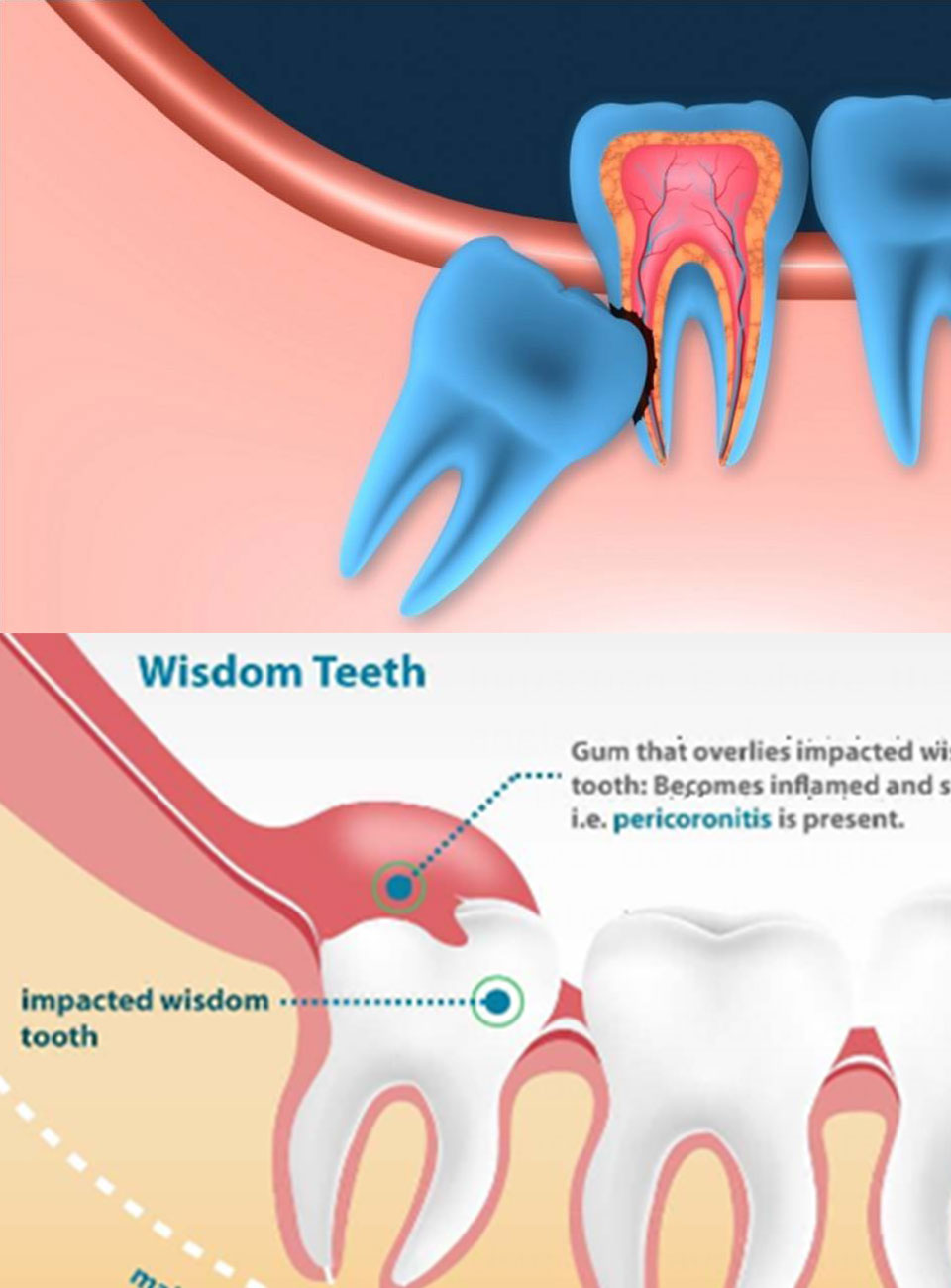 Simple & Surgical Extractions Treatment Ajmer