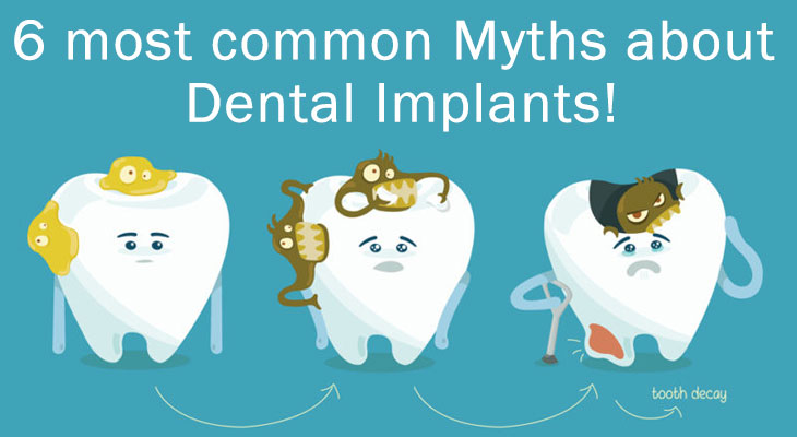 6 most common Myths about Dental Implants!