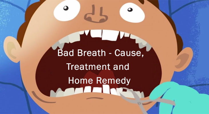 Bad Breath - Cause, Treatment and Home Remedy