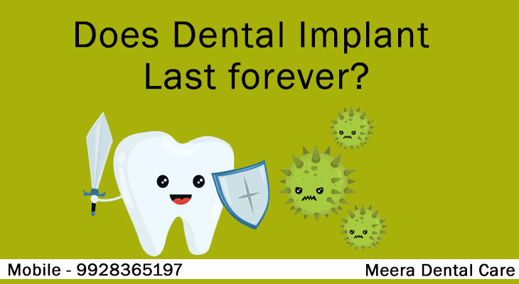 Does-Dental-Implant-Last-foreve