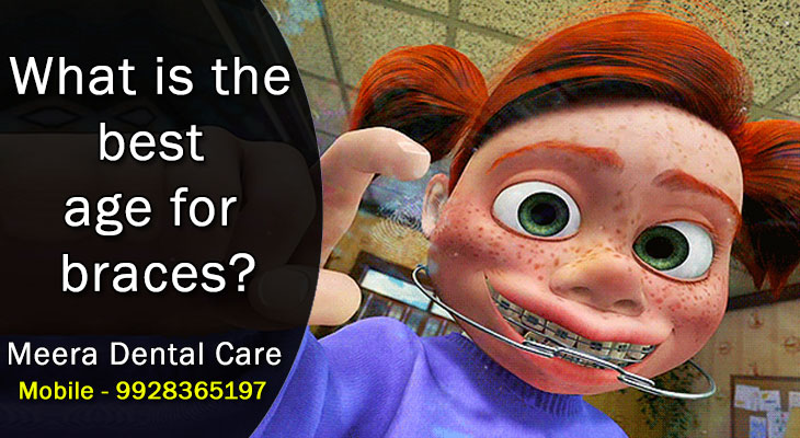 What is the best age for braces? animated