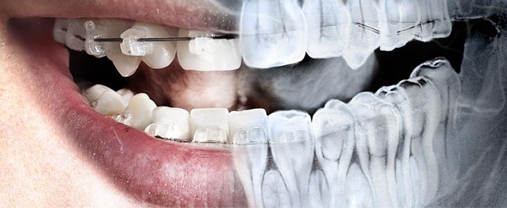 Dental-Radiology-Treatment-Ajmer