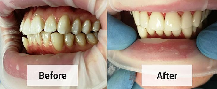 Full-Ceramic-Treatment-Ajmer
