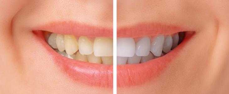 Teeth-Whitening-Treatment-Ajmer