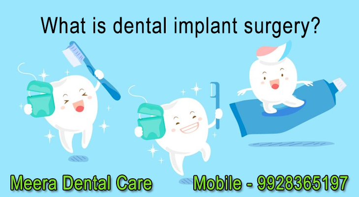 What-is-dental-implant-surgery